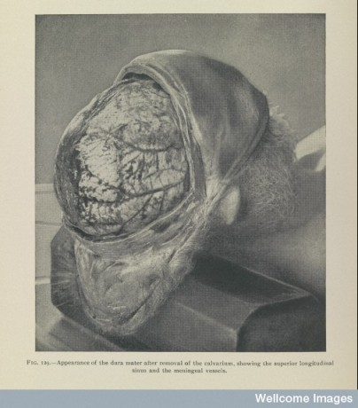 Appearance of the dura mater From: Post-mortem pathology : a practical treatise for students and practitioners / By: Henry W. Cattell (J.B. Lippincott,London, 1905).