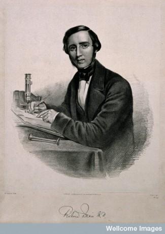 Sir Richard Quain. Lithograph by W. Sharpe.