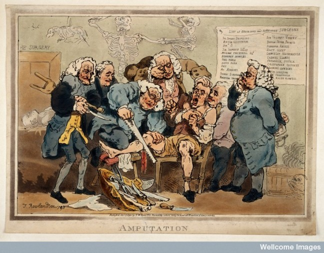 Five surgeons participating in the amputation of a man's leg while another oversees them.  Coloured Aquatint by Thomas Rowlandson, 1793.